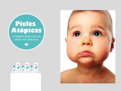 Atopía bebé